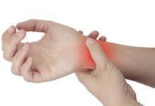 Rimedi per la sindrome del Tunnel Carpale ecco come alleviare il dolore