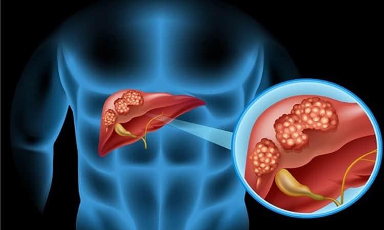 Tumori alle vie biliari: sintomi e nuove cure