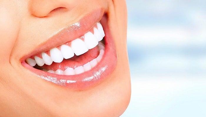 Come sbiancare i denti: Rimedi naturali e veloci per denti perfetti!